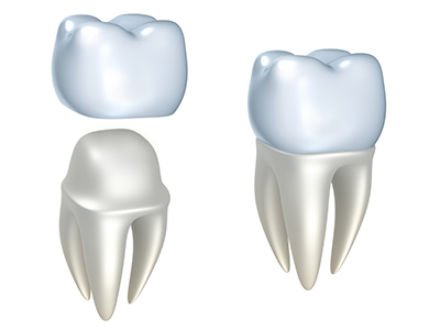 Crowns at Michael B. Litchfield, DMD, Family Dentistry